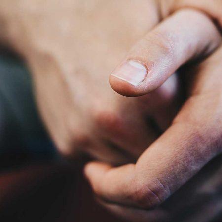 Lézeres körömgomba kezelés